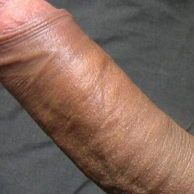 Penis Profile 35