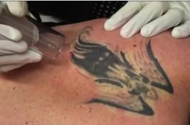 Tattoo Removal News (@TattooRemovalz)   Twitter
