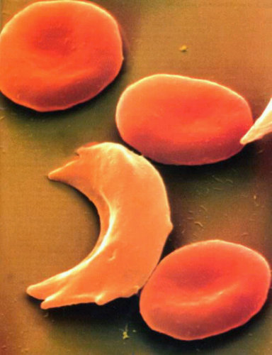 essays on sickle cell disease