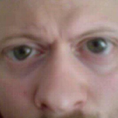 flimmer i ögonen