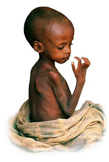Hungry Africans StarvingAfricanChild (...