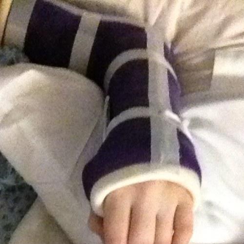 A broken arm wont stop me 2
