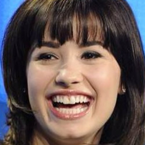 Demi Lovato Teeth Before After