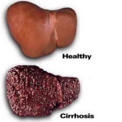 your liver (@neglectedliver) | twitter, Sphenoid
