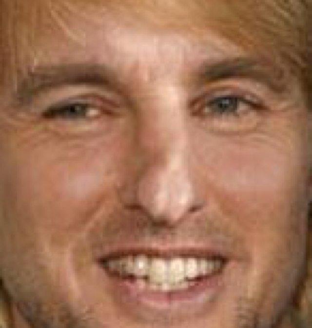 Owen wilson nose before broken