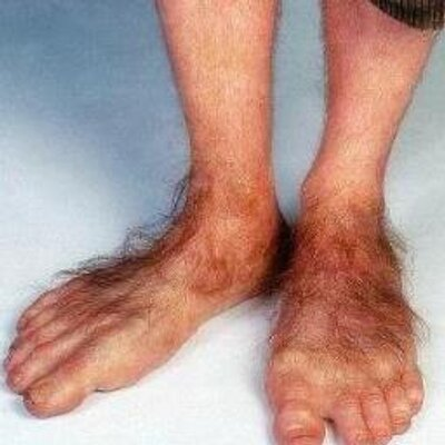 Image result for frodo's feet