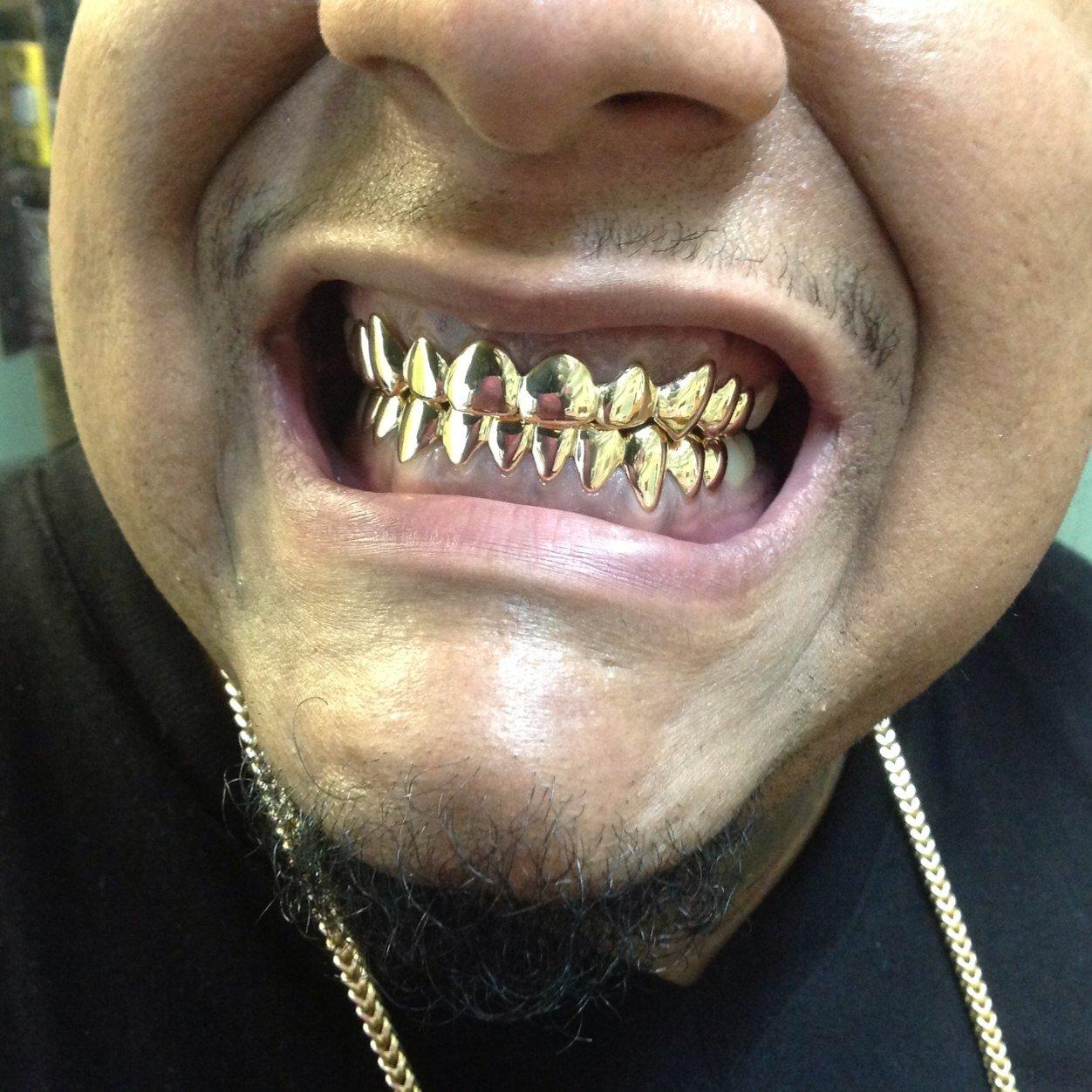 Поставить золотые зубы сон