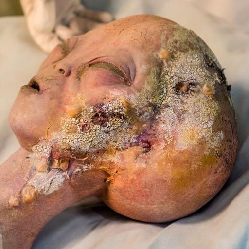 Celebrity autopsy photos jfk
