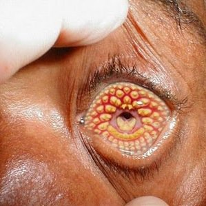 madura disease
