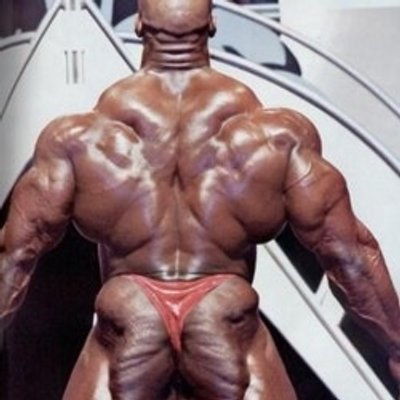 spotty back from steroids