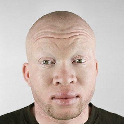 albino black guys
