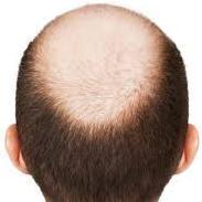 Alopecia No More