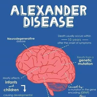 Image result for alexander disease