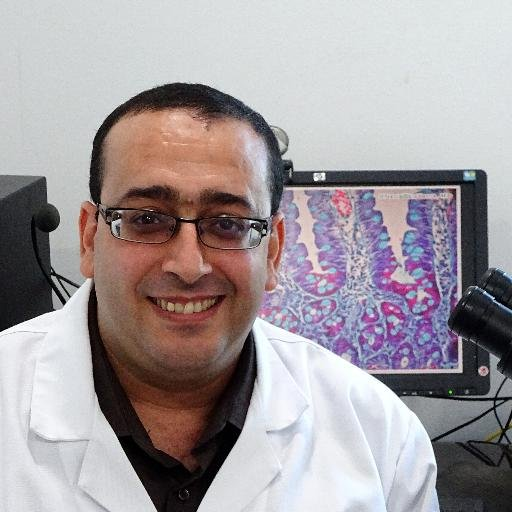[Rant] Adenomyosis and Hematosalpinx (Women Stuff, Men Brace Yourselves): ChronicPain