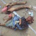 اليمن ينزف (@0r2H0VFAgj6oZfY) Twitter