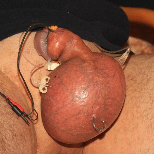 Hodeninjektion