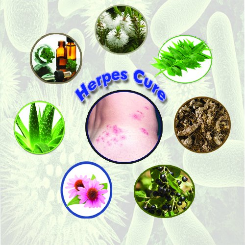 herpes cure (@cureherpes9) | Twitter