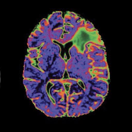 UCSF Neurosurgery