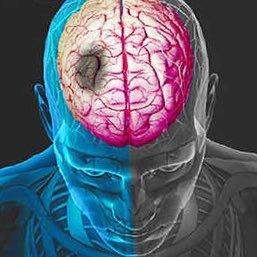 Resultado de imagem para acute stroke
