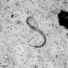 RT @InfoMyT: El sistema inmunológico humano al momento de atacar a un germen. https://t.co/zmi1Z109QI