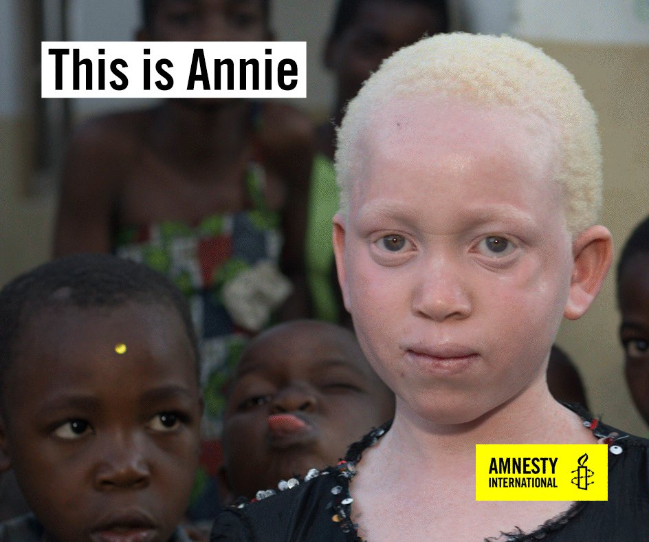 people with albinism What is albinism albinism is a condition in which people have little or no melanin pigment (compound that creates colour) in their eyes, skin or hairbecause of this people with albinism look a little different from other members of their family without albinism.