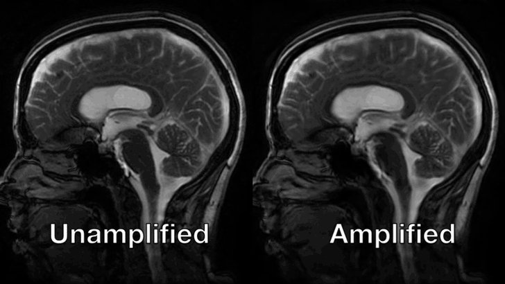 Watch the brain jiggle with each heartbeat. http://ow.ly/E3uA30kFBgp