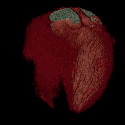 Have an achy breaky heart? Cardiac CT can help doctors better assess the source of your chest pain, finds study. #CT #HeartDisease #HeartMonth #HeartHealth @NEJM https://invent.ge/2S4ohnI