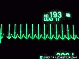 cardio GIF