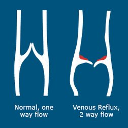 If you have chronic venous insufficiency (CVI), the valves don't work like they should and some of the blood may go back down into your legs. That causes blood to pool or collect in the veins. Over time, CVI can cause pain, swelling, and skin changes in your legs. #veins pic.twitter.com/qb2gsIv3Oy