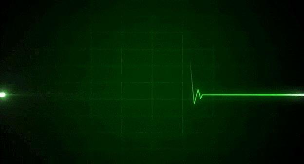 heartbeat GIF